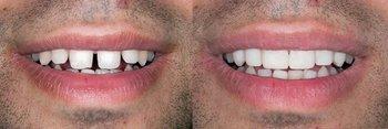 Smile Gallery - Eco Dental, Homer Glen Dentist