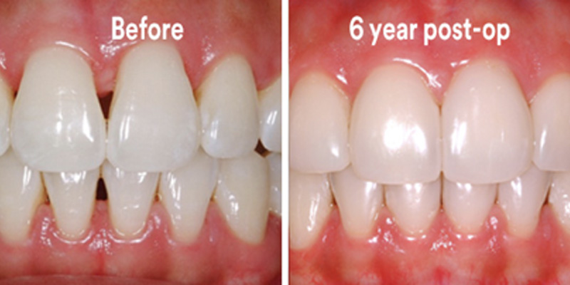 BioClear Diastema Closure and Black Triangle Closure  - Eco Dental, Homer Glen Dentist