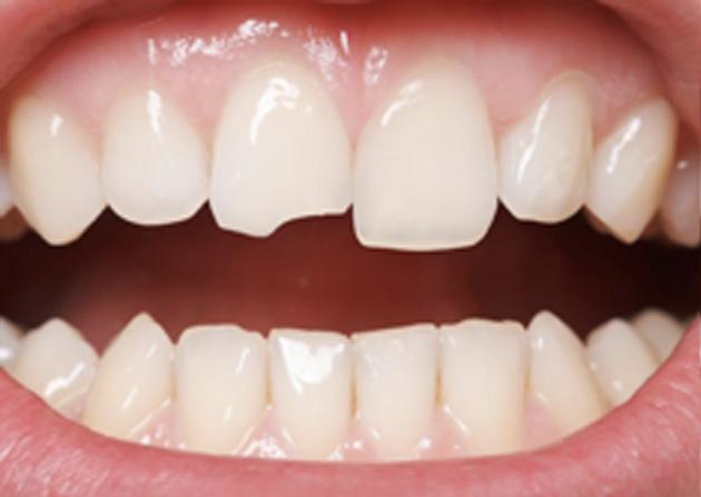 Cosmetic Bonding  - Eco Dental, Homer Glen Dentist