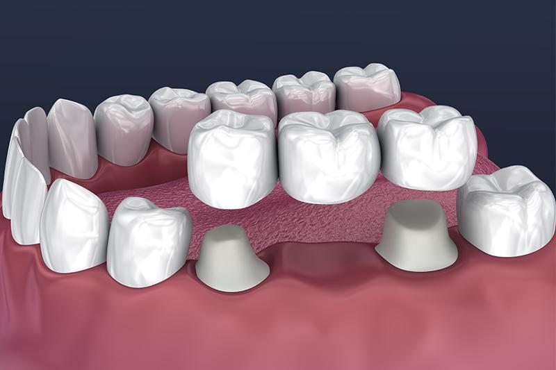 Crowns and Bridges, Inlays and Onlays  - Eco Dental, Homer Glen Dentist
