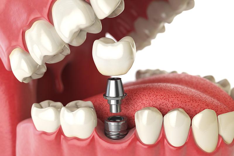 Dental Implants - Eco Dental, Homer Glen Dentist