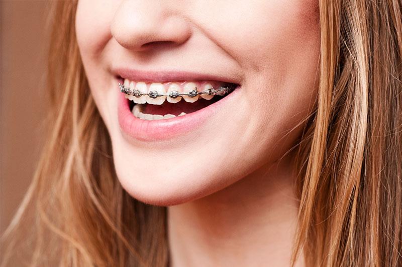 Orthodontics - Eco Dental, Homer Glen Dentist