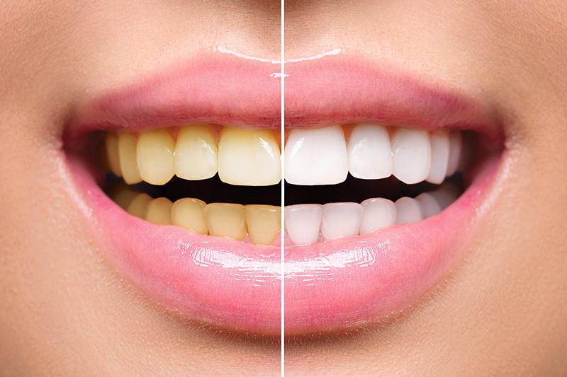 Teeth Whitening - Eco Dental, Homer Glen Dentist